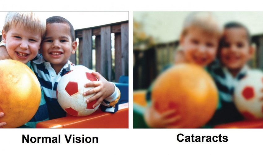 normal vision-and-cataract-eye-care